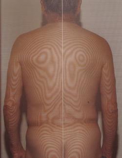 背中の鍼治療 治療前(モアレ)