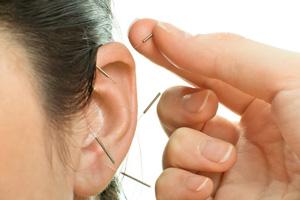 突発性難聴の鍼治療