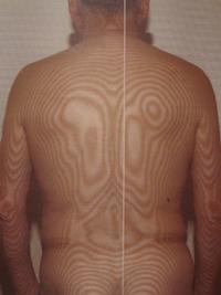頚椎の側弯
