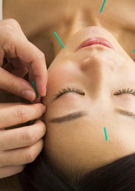 顔へ鍼をすることで血流を改善します