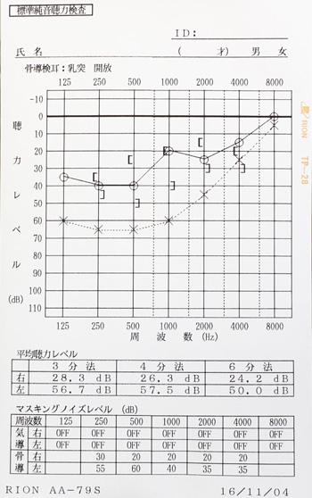 急性急性低音型感音難聴 治療前 オージオグラム