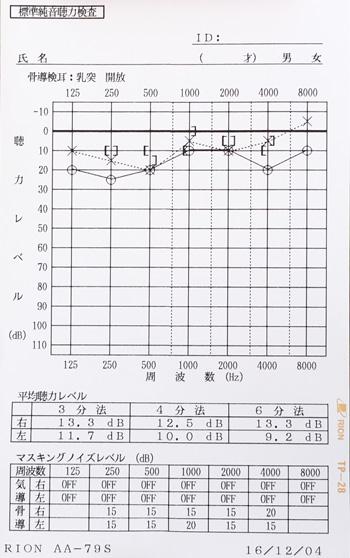 急性急性低音型感音難聴 治療後 オージオグラム