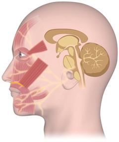 舌の神経と縫合した顔面神経麻痺