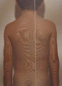 ムンプス難聴後遺症 体の歪み 治療前