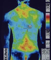 ムンプス難聴後遺症 体幹温度 治療前