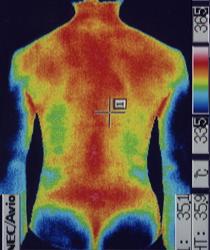 ムンプス難聴後遺症 体幹温度 治療後