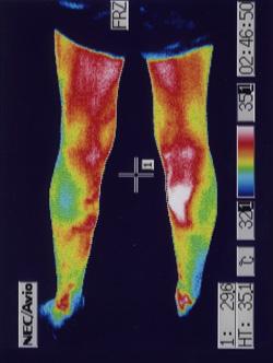 ふくらはぎの血流低下 治療後サーモ画像