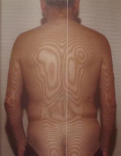 頚椎の側弯 治療前モアレ画像