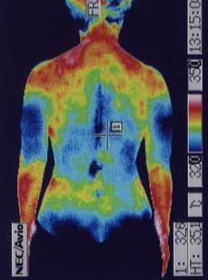 鍼灸治療で改善した腰の血流