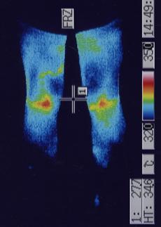 外リンパ瘻 足の血流 治療前