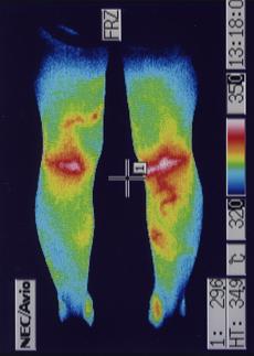 外リンパ瘻 足の血流 治療後