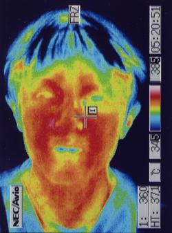 聴神経腫瘍後遺症 顔面神経の部分断裂 治療後