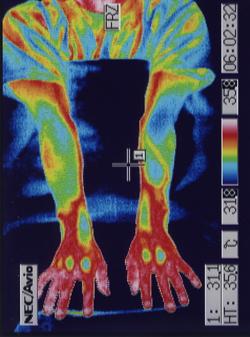 外リンパ瘻 手の血流 治療後