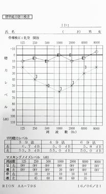 突発性難聴 Bタイプ 治療前のオージオグラム