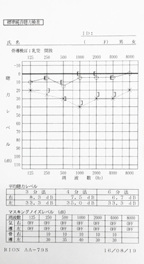 突発性難聴 Bタイプ 治療後のオージオグラム