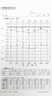 突発性難聴 Cタイプ 治療前のオージオグラム