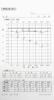 突発性難聴 Cタイプ 治療後のオージオグラム