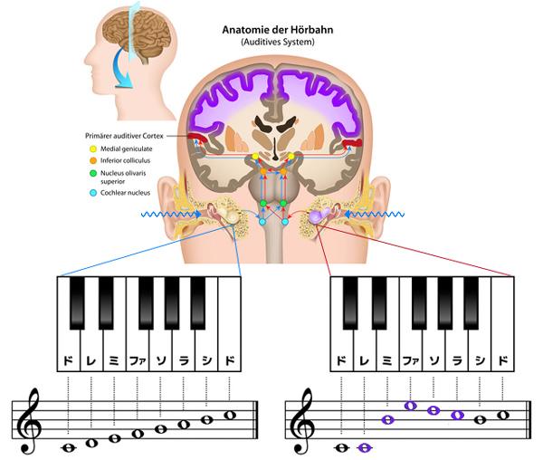 音の処理で混乱する脳(突発性難聴)