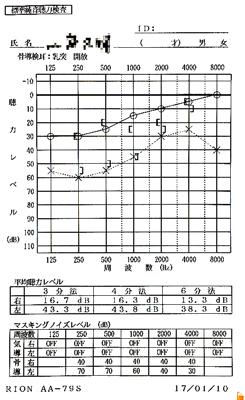 突発性難聴後遺症の原因|オージオグラム検査(治療前)